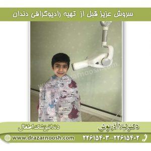رادیوگرافی دندان در کودکان