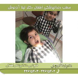 کشیدن دندان در کودکان