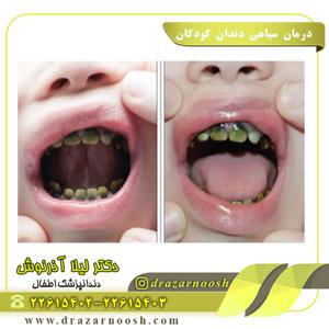 درمان سیاهی دندان کودکان