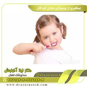 پیشگیری از پوسیدگی دندان کودکان