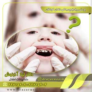 پرسش و پاسخ پوسیدگی دندان کودکان