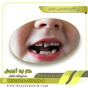 دیر افتادن دندان شیری کودکان