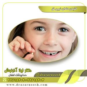 کشیدن دندان شیری لق
