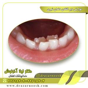 عوارض دیر افتادن دندان شیری