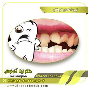 تروما دندان کودکان