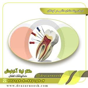 درمان ریشه دندان دائمی در کودکان