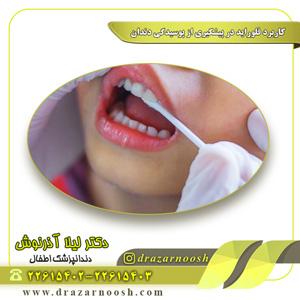 کاربرد فلوراید در پیشگیری از پوسیدگی دندان