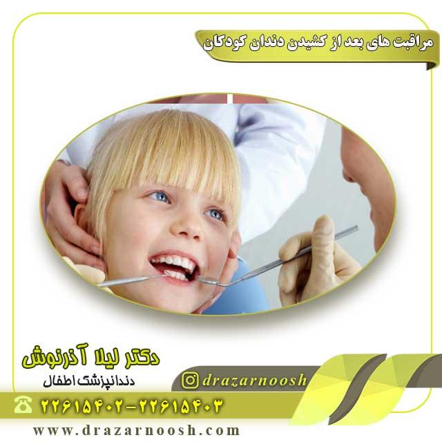 معاینه-دندان-کودکان