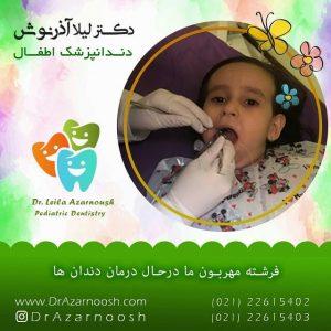 درمان دندان کودکان